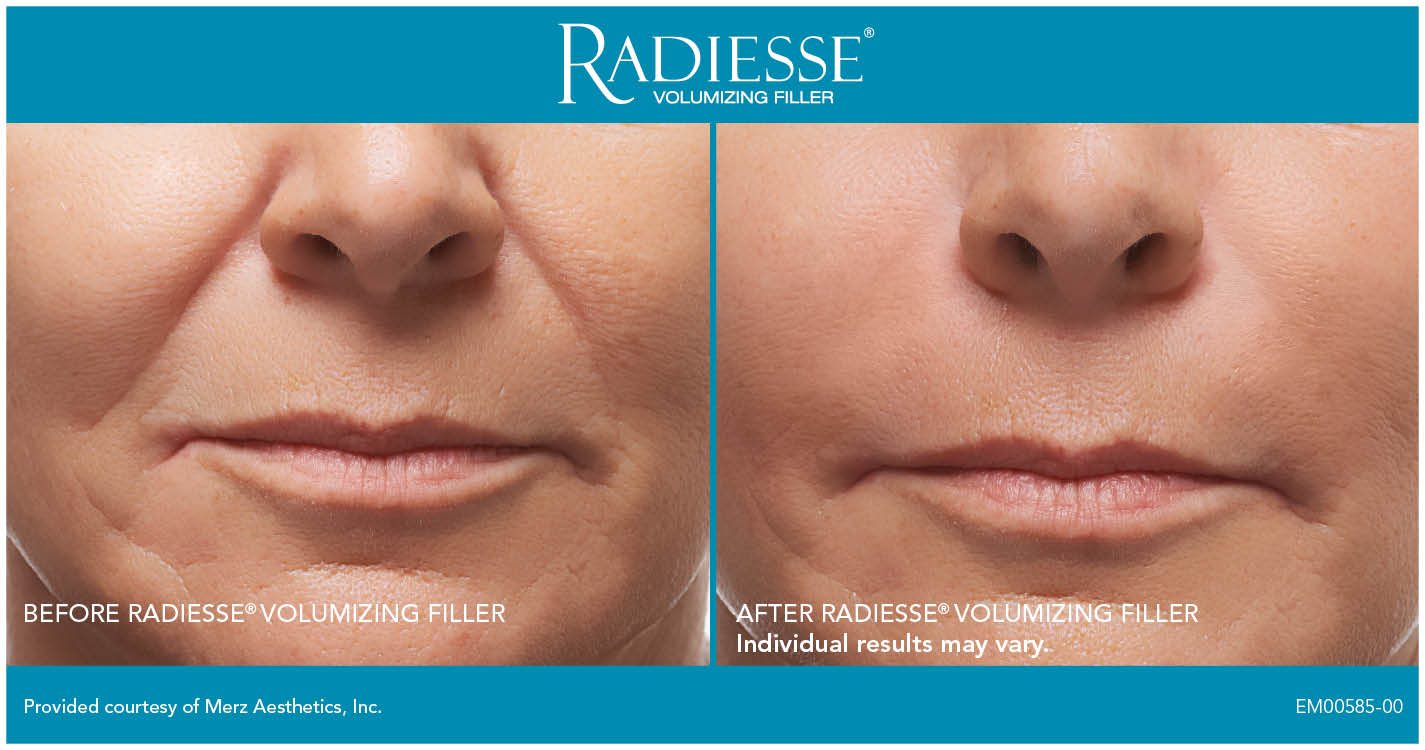 Radiesse Treatments - Smooth Synergy