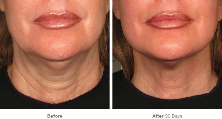 ultherapy for neck