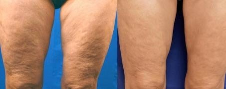 microneedling with rf for body